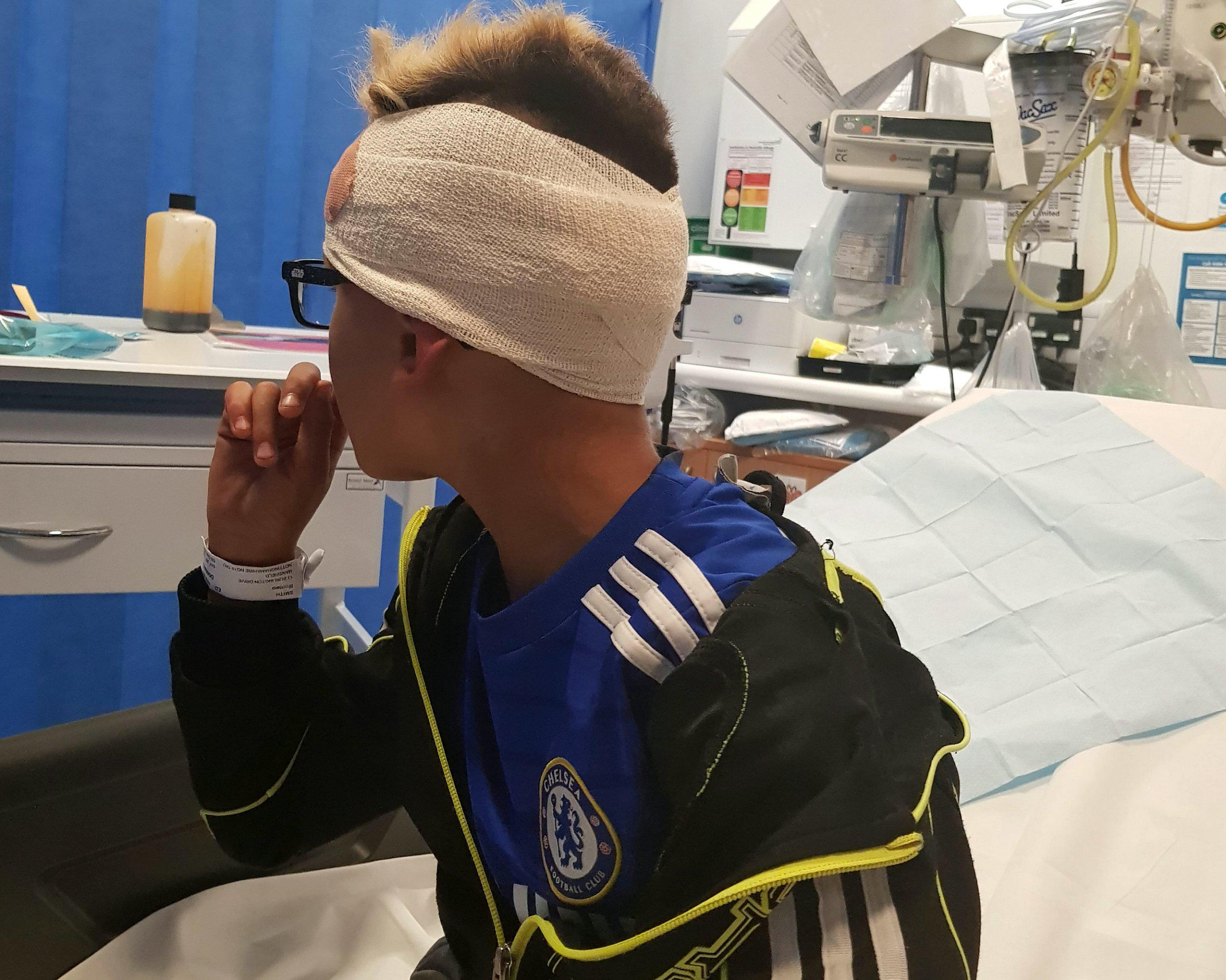 Boy, 9, has rusty nail impaled into his head by bullies