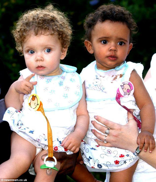 Amazing twins: Marcia (left) and Millie (right) pictured on their first birthday