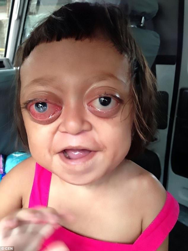 Rescued: Anabelle, now seven, would be beaten by her slavers to make her cry so as to evoke sympathy from passersby in the streets in the Philippines