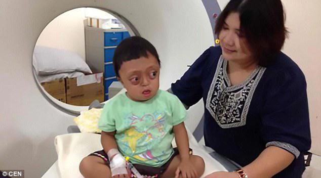Η Anabelle απεικονίζεται μετά από τη χειρουργική της επέμβαση για να αντισταθμίσει κάποιες από τις δυσπλασίες που προκαλούνται από το σπάνιο γενετικό σύνδρομο Crouzon, που ονομάζεται επίσης συγγενής κρανιοπροσωπική δυσαπόσταση