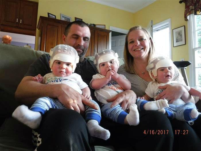 Τρίδυμα μωρά έγραψαν ιστορία όταν υποβλήθηκαν σε λεπτή χειρουργική επέμβαση λόγω σπάνιας γενετικής πάθησης και βγήκαν νικητές