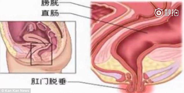 Η διόγκωση που βγαίνει από τον πρωκτό μπορεί μερικές φορές να αποσύρεται πίσω στο σώμα