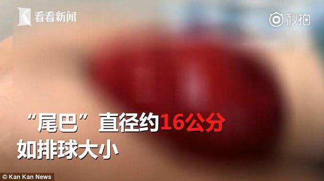 Ένας άνθρωπος στην Κίνα έπρεπε να βιαστούσε στο νοσοκομείο αφού είδε ένα μυστηριώδες κομμάτι που βγήκε από τον πρωκτό του