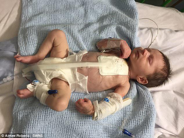 Leo remained in hospital for the first nine weeks of his life, during which time he had five further operations for complications and infections arising from the surgery