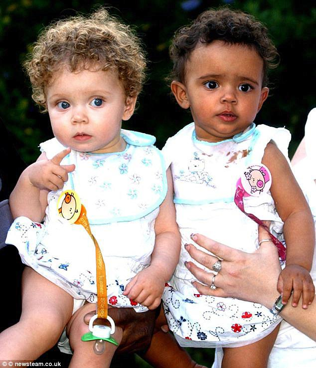 The twins, of Birmingham, England, were born on July 3, 2008 to a white mother and black father