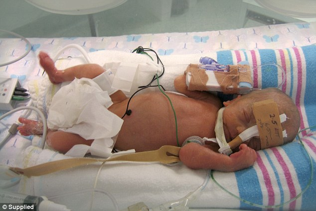 Evan (pictured at seven days old) and Jasper initially responded well to neonatal care and the couple's hope grew