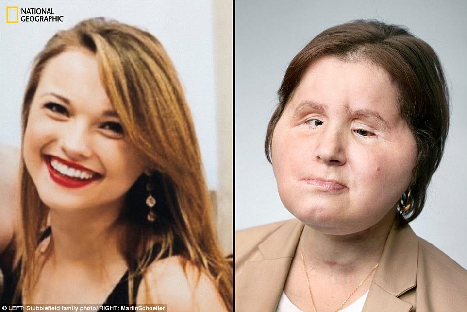 Ιστορική: η Katie Stubblefield προσπάθησε να πάρει τη ζωή της το Μάρτιο του 2014 με ένα τουφέκι. Στις 4 Μαΐου 2017, έγινε το νεώτερο άτομο που έλαβε ποτέ μεταμόσχευση προσώπου. Εικόνα: Katie (αριστερά) ηλικίας 17 ετών, οκτώ μήνες πριν από την απόπειρα αυτοκτονίας της. και (δεξιά) στις 22, ένα χρόνο μετά τη μεταμόσχευση. Τώρα βρίσκεται σε ανοσοκατασταλτικά φάρμακα καθώς μαθαίνει πώς να περπατάει, να μιλάει και να διαβάζει Braille