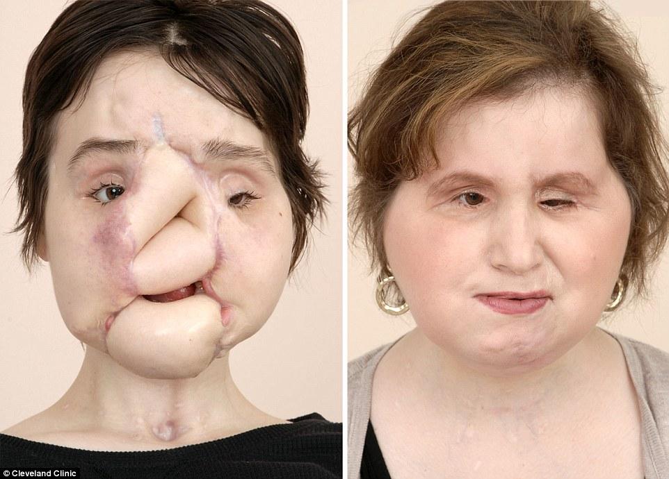 Η Katie (απεικονίζεται, αριστερά, πριν από τη λειτουργία της και, σωστά, μετά) είναι το 40ο άτομο στον κόσμο που λαμβάνει μεταμόσχευση προσώπου και το τρίτο στην κλινική Cleveland