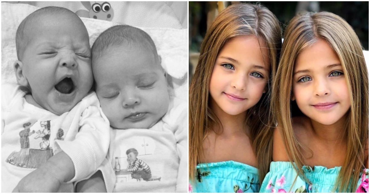 2be8133120c Δίδυμα κορίτσια γεννήθηκαν το 2010 – Τώρα είναι τα πιο όμορφα παιδιά του  κόσμου!