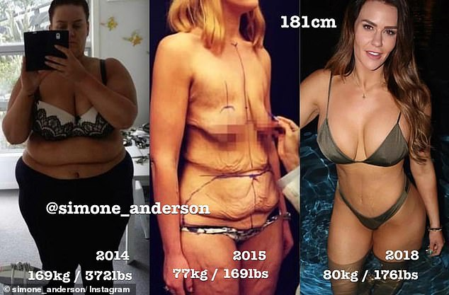 She underwent a nine-hour surgery in late 2015 - a mammoth operation that cost more than $20,000 and included abdominoplasty, a bra line back lift and a breast lift and augmentation and another surgery earlier this year to remove it