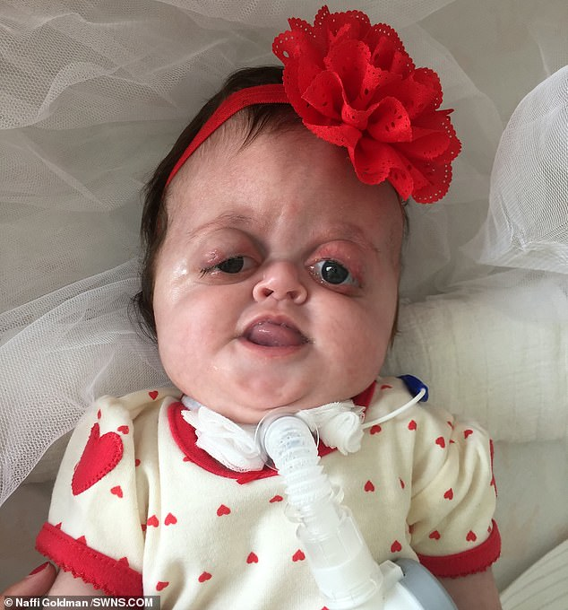 The parents of a baby girl with facial disfigurements have hit back after vicious online trolls branded her a 'monster' and said she should be 'killed'