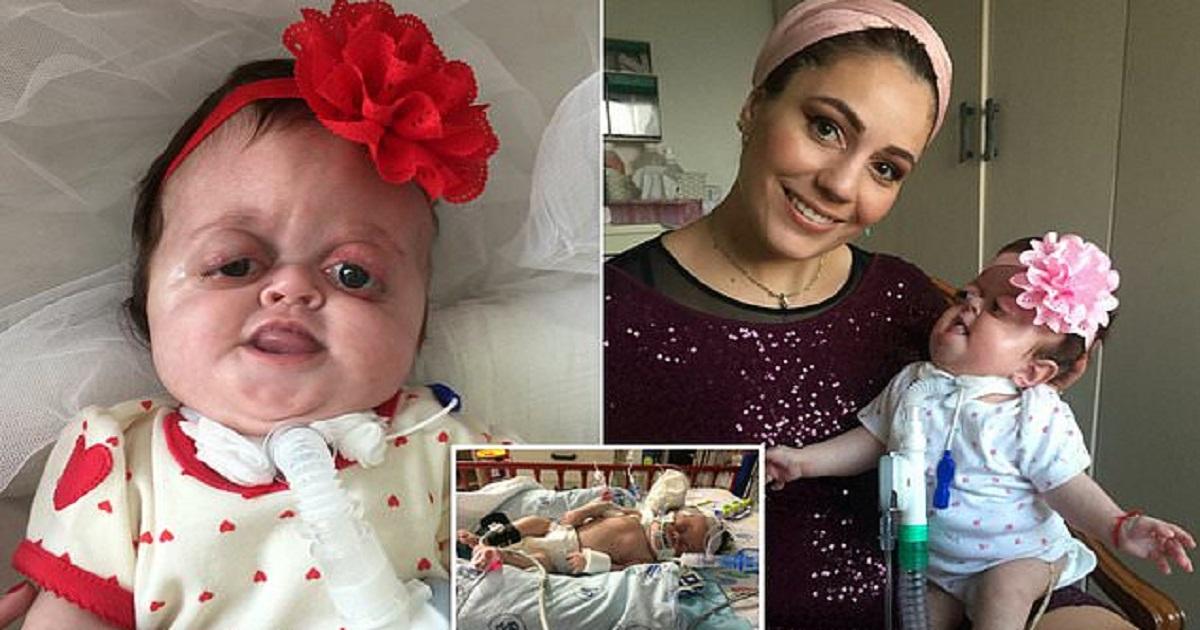 Τρολ του Ίντερνετ κορόιδεψαν και φώναζαν «τέρας» άρρωστο μωρό που γεννήθηκε με παραμορφωμένο πρόσωπο