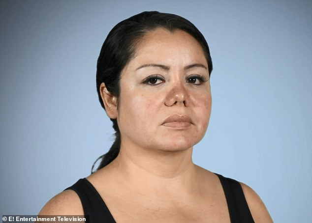 Unbelievable: The doctor told Mariela that he gave her a nose job as a 'favor' to her