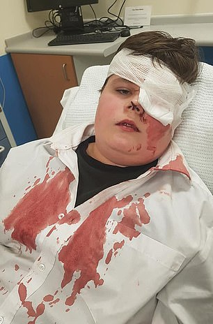 Nathaniel Dryden, from Shelton Lock, Derbyshire, could be scarred for life after the unprovoked attack on February 6 which left him 'absolutely covered' in blood