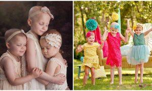 0bc3e0d49fd Τρία γενναία κοριτσάκια βγήκαν μαζί νικήτριες από τον καρκίνο και στέλνουν  το δικό τους μήνυμα