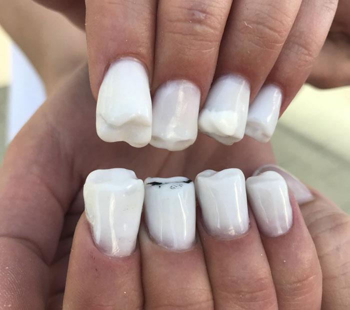Ήρθαν τα νύχια σε σχήμα δοντιών και είναι η πιο άσχημη μόδα που βγήκε ποτέ - Εικόνα 3