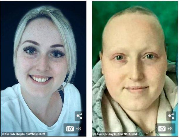 Της είπαν πως έχει καρκίνο και της έκοψαν τους 2 μαστούς. Μήνες μετά τις είπαν πως έκαναν λάθος διάγνωση - Εικόνα 3