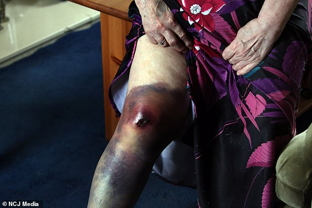 They ran off, leaving her distraught on the floor with an injured knee, pictured, and severe bruising around her eyes