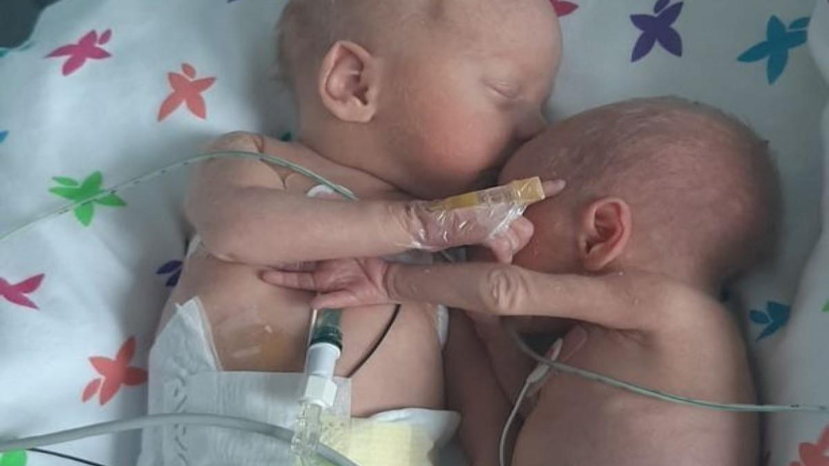 54834 0 Tiny baby girl doctors said wouldnt make it cuddles twin brother for first time