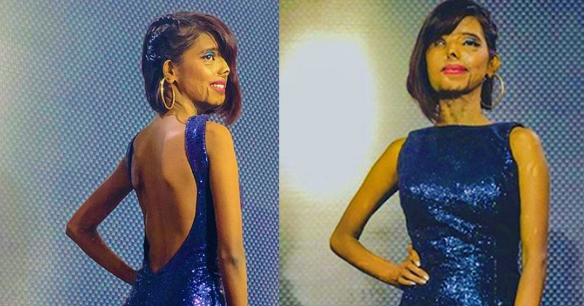 The Inspirational Story Of Anmol Rodriguez, Acid Attack Warrior And A Proud Model | Curly Tales